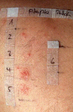 Atopy patch test ppt